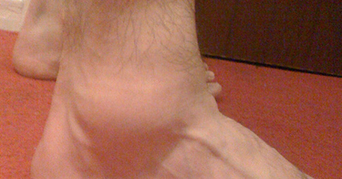 home remedy to reduce swelling