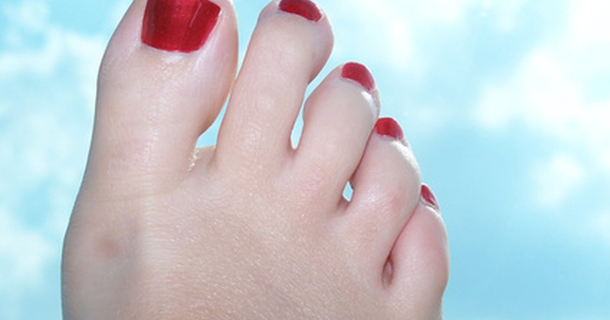 skin peeling off bottom of feet