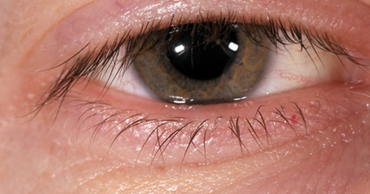 Swollen Lower Eyelid Causes