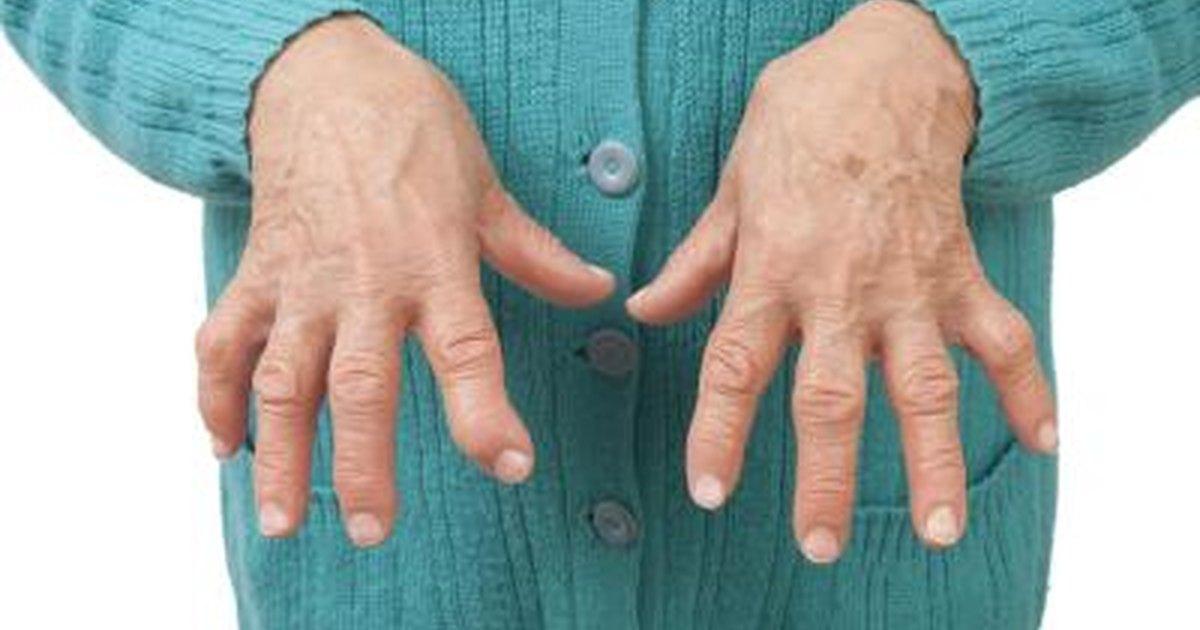 Systemic Symptoms Of Rheumatoid Arthritis