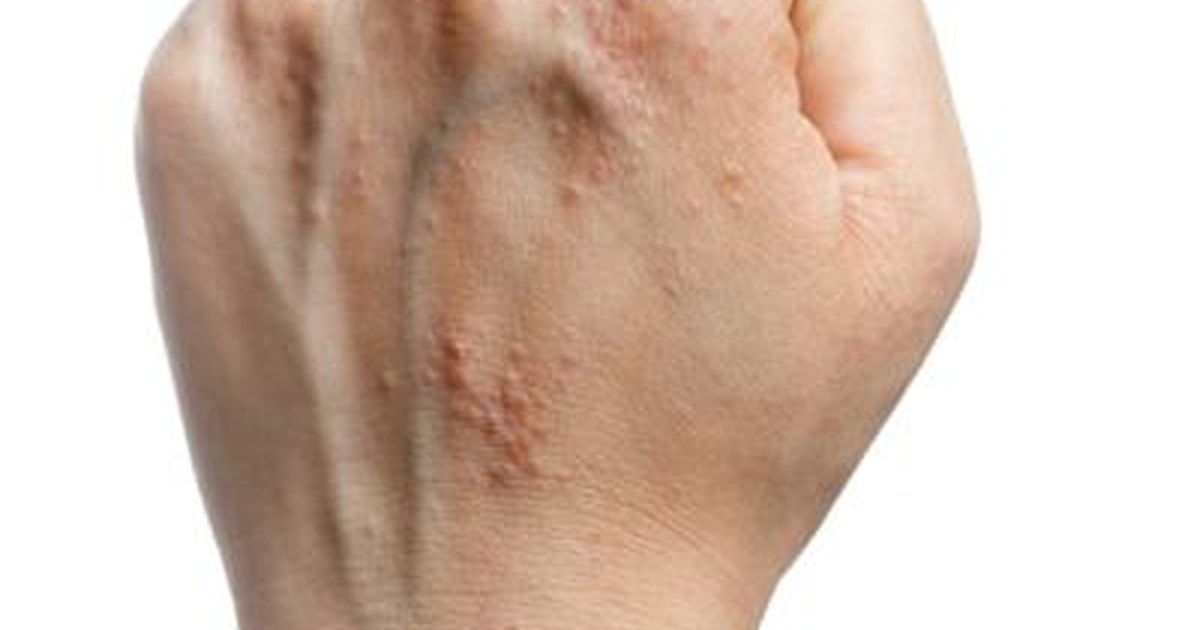 Red spots on hands - Skin Forum - eHealthForum