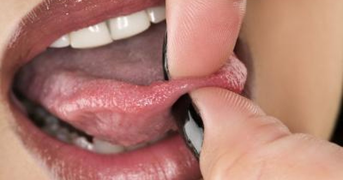Signs & Symptoms of an Infected Tongue Ring | LIVESTRONG.COM