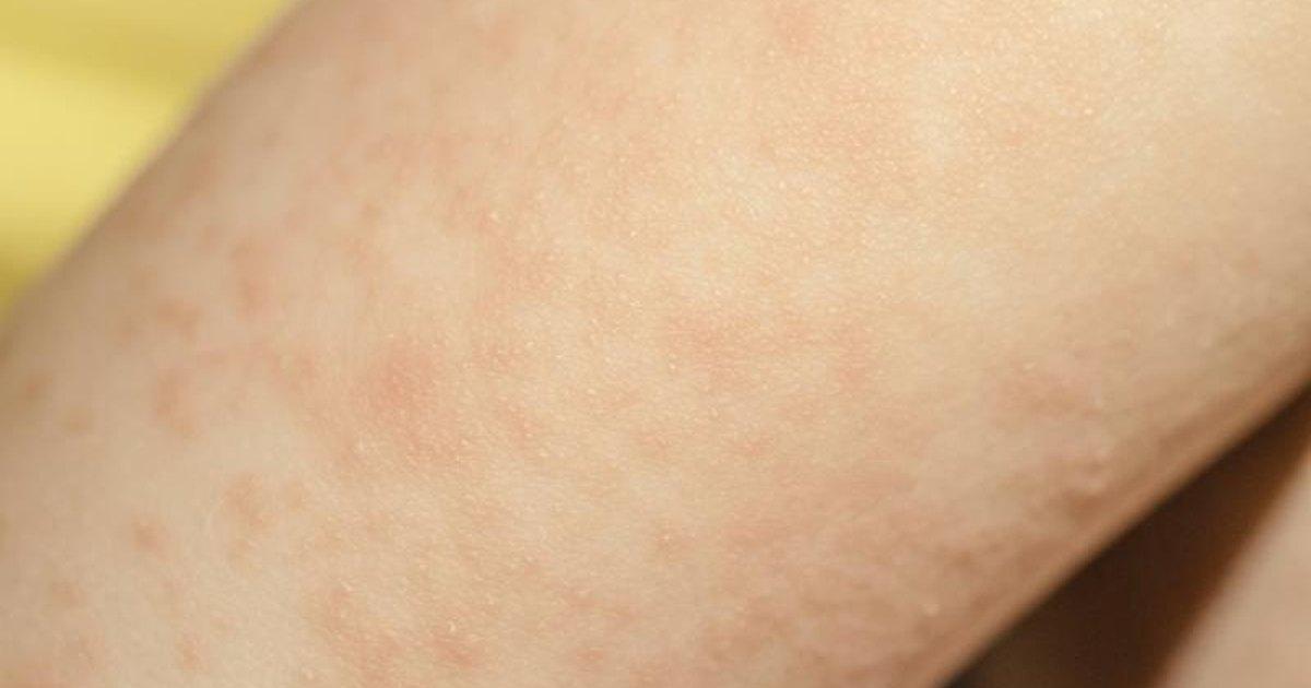 Causes Of A Full Body Rash Livestrong Com