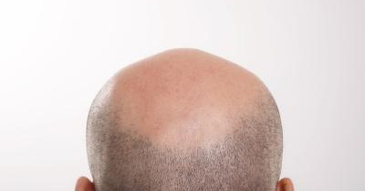 Other benefits are linked to a dandruff free scalp and other scalp conditions like psoriasis 2