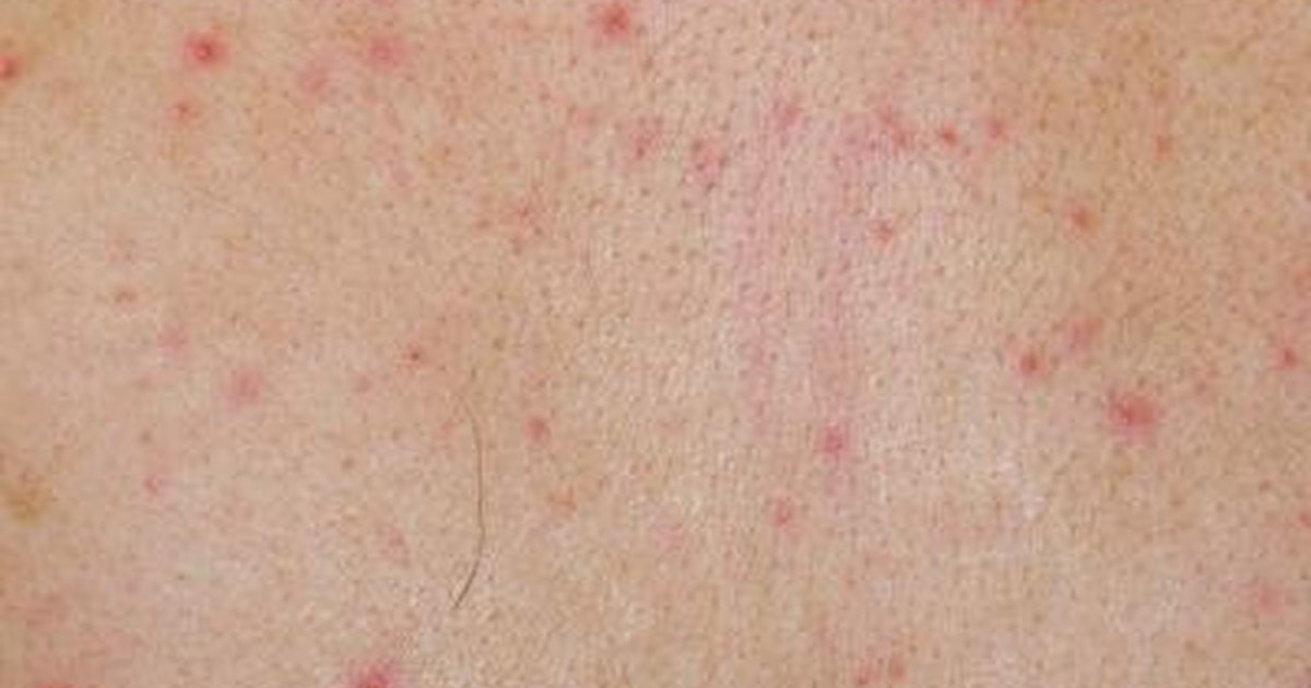 Rash on Buttocks - Dermatology - MedHelp