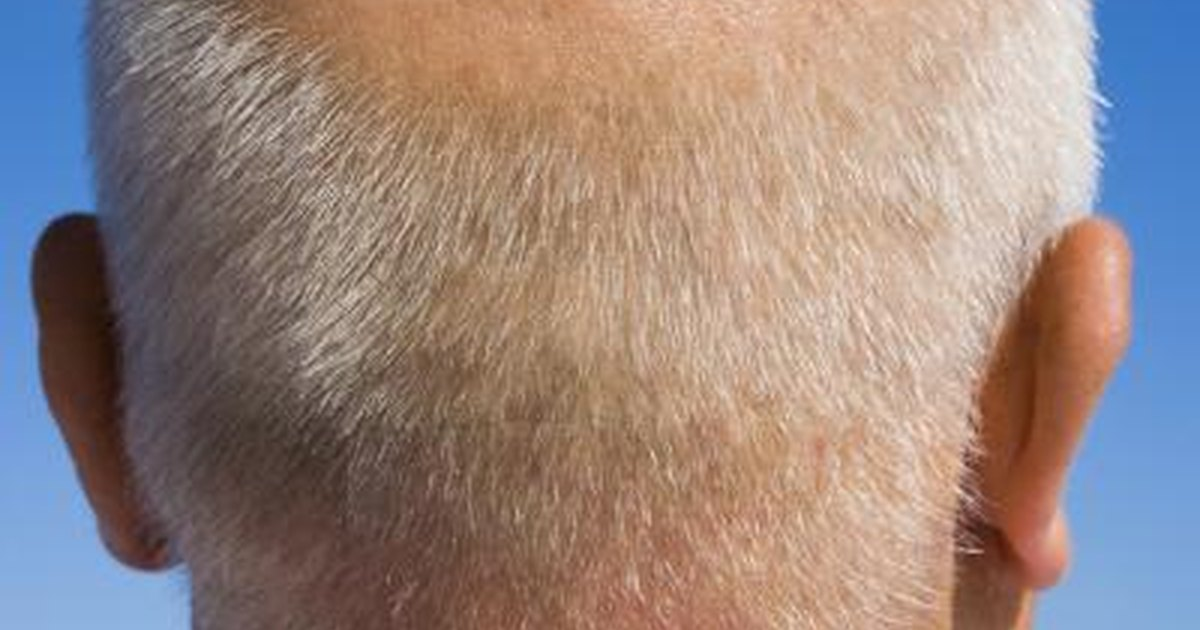 A dry scalp may also sometimes indicate serious medical conditions such as eczema and psoriasis 2