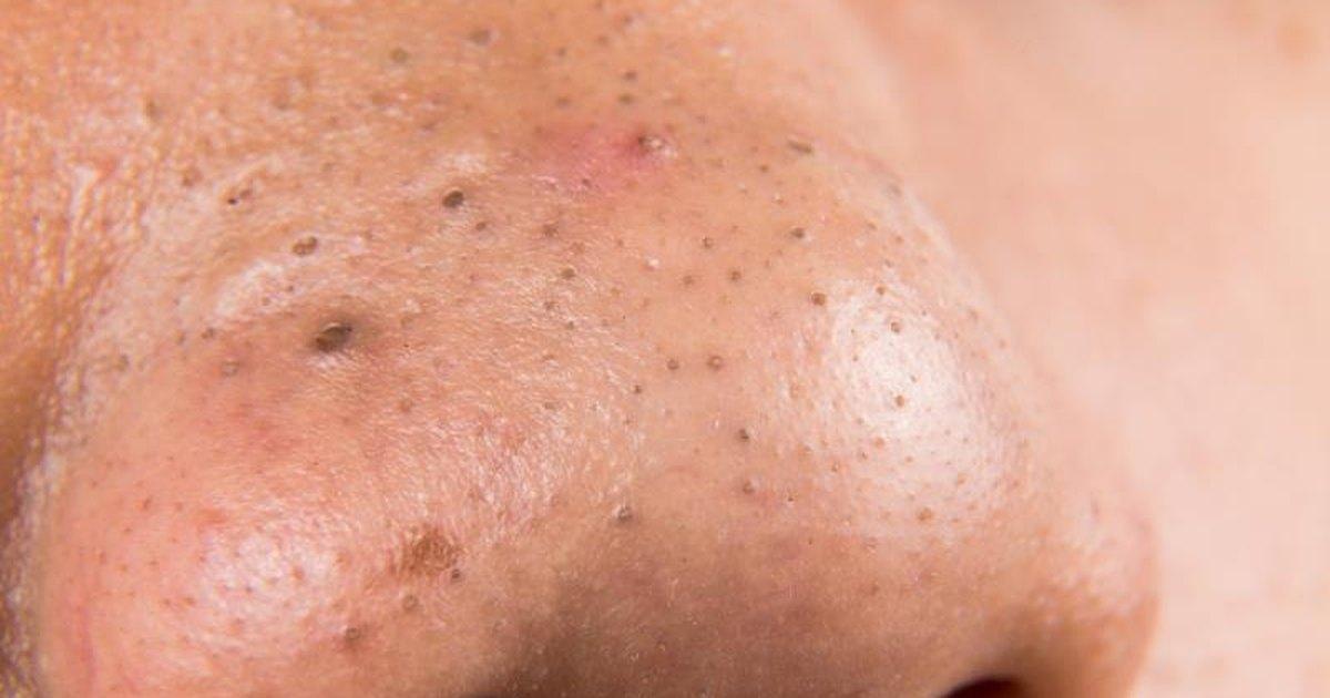 rash inside elbow #11