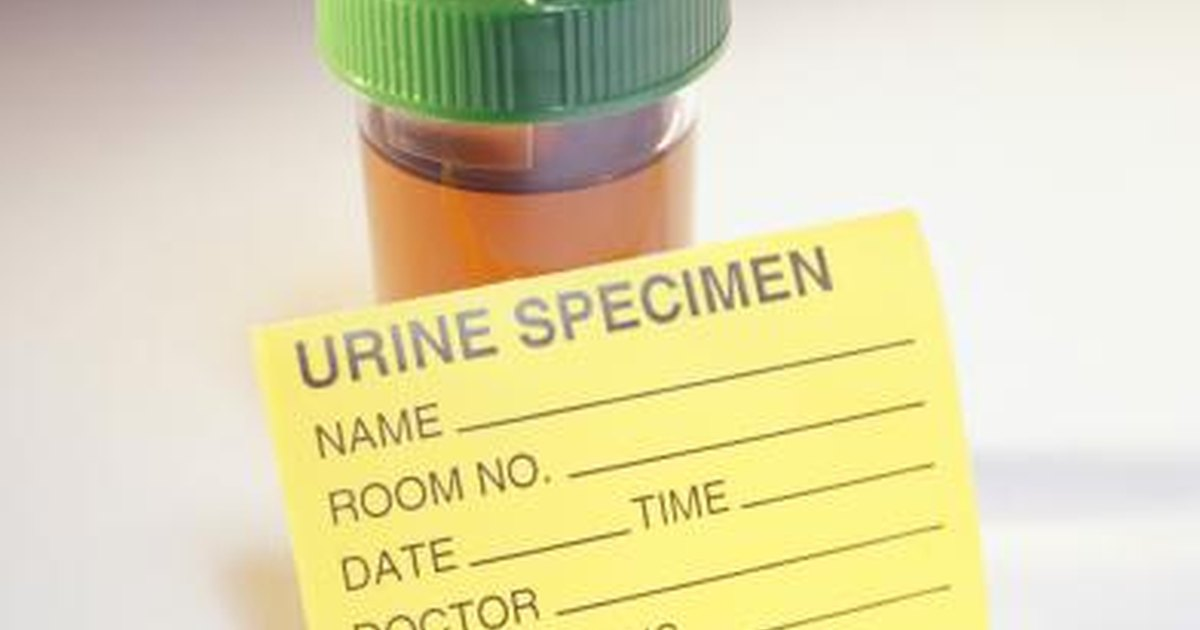 herbal tea to reduce uric acid gouty arthritis normal uric acid alternative treatment for gouty arthritis