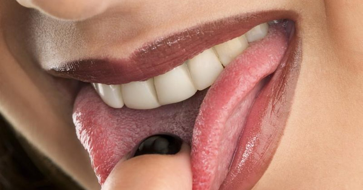 Symptoms of Vitamin B12 Deficiency on the Tongue ... B12 Deficiency Tongue