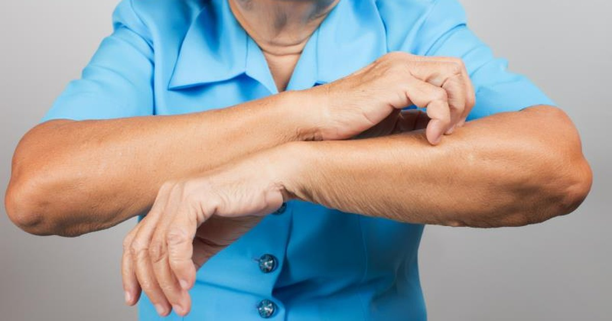 There are several non-drug therapies that may help the symptoms of psoriasis 1