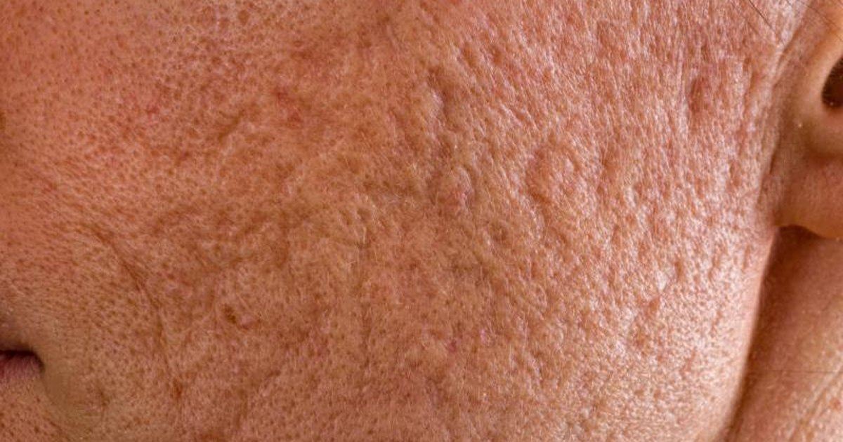 Acne Visual Dictionary: Pictures of Types of Acne and How ...