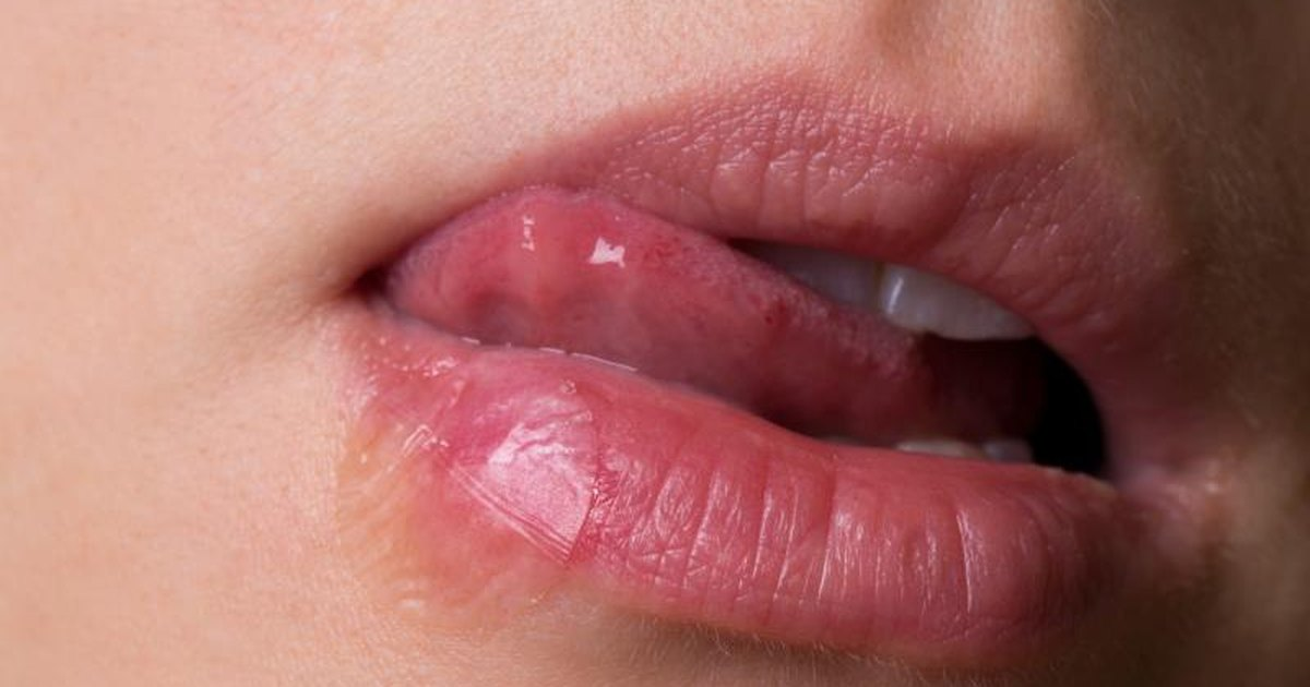 Symtoms of oral herpes