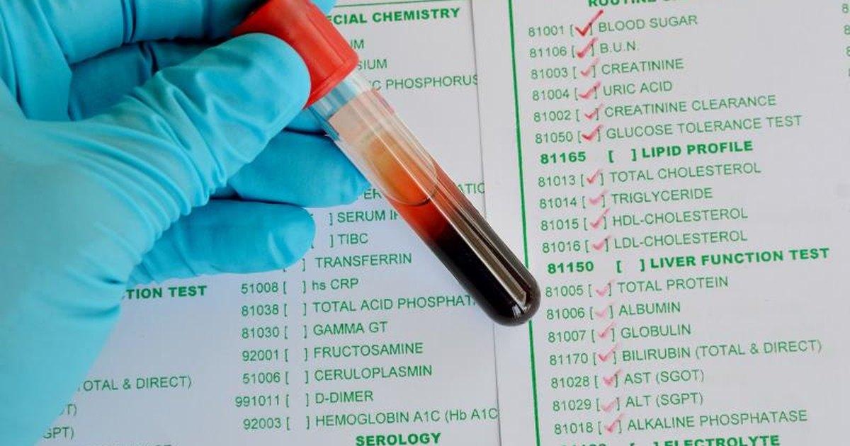 Abnormal Creatine Phosphokinase Levels | LIVESTRONG.COM