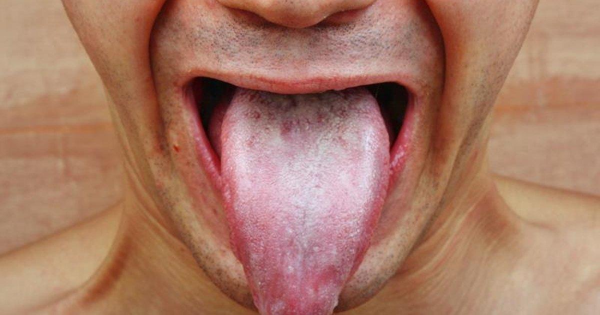 mild thrush on tongue