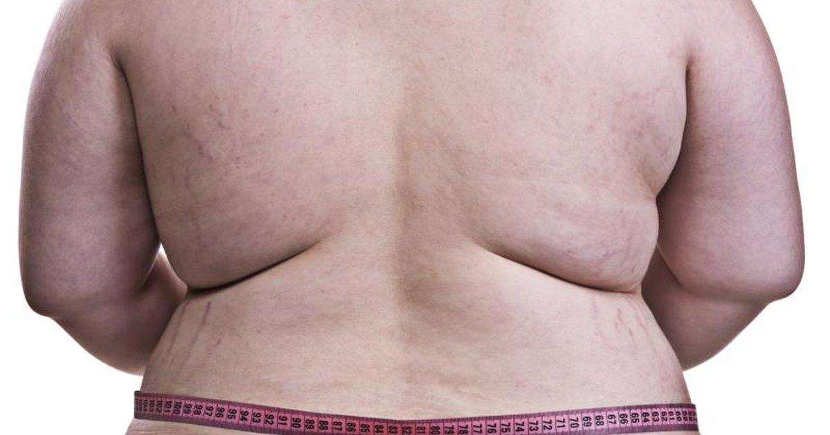 Фото толстой женщины с целлюлитом