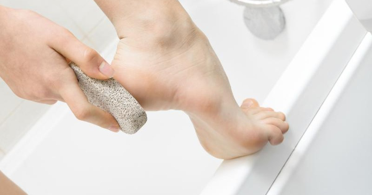 how to get rid of toe hair