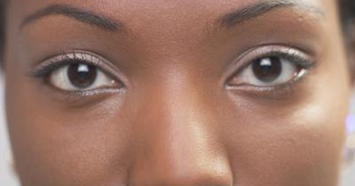 how to fix dark circles under eyes