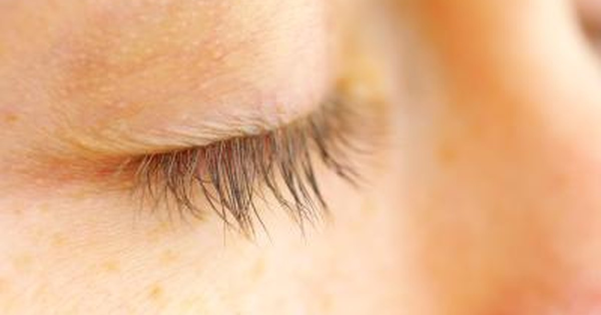 Flaky, Crusty Peeling Skin on Eyelids | LIVESTRONG.COM