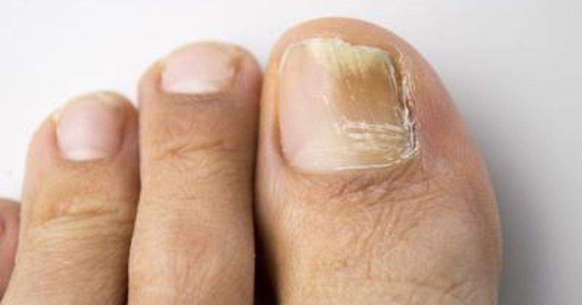 how to kill toenail fungus in shower