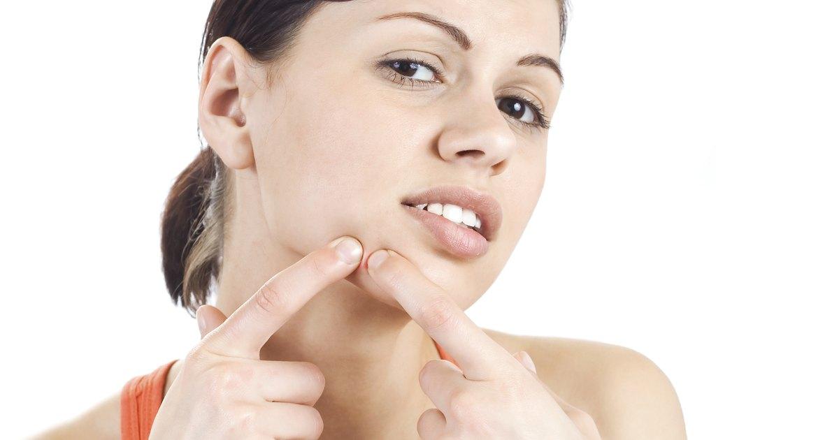 How to Use Clearasil Vanishing Acne Treatment Cream
