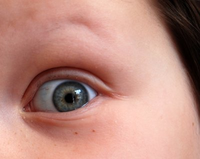 Are Eye Drops Safe for Kids?