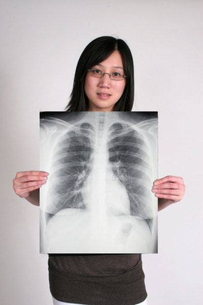 Characteristics of Healthy Lungs