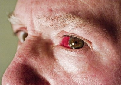 Causes of Broken Eye Blood Vessels