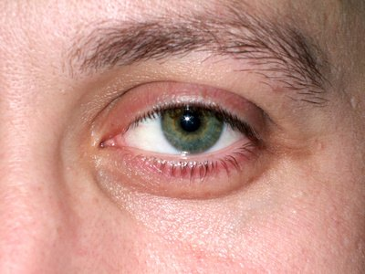 Cold in the Eye Symptoms