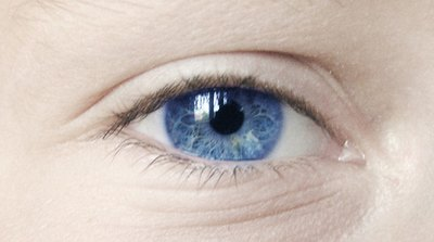 Adverse Reaction to Pupil-Dilating Eye Drops