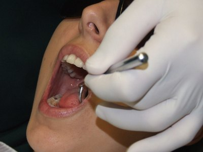 Medical Problems Caused by Rotten Teeth