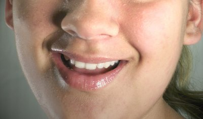 Natural Remedies to Treat Receding Gums