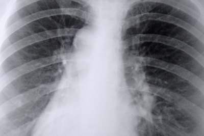 Radon exposure increases lung cancer risk.