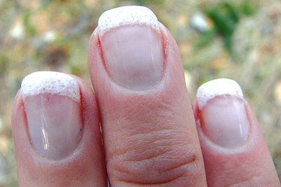 What Are the Causes of Brittle Fingernails That Crack & Split?