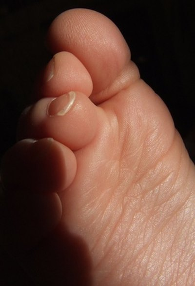 How to Cure Tingling Pain in the Foot