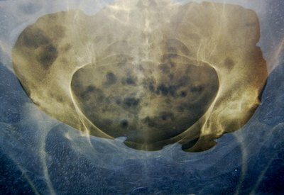 Hip Bone Cancer Symptoms