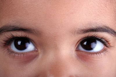 Treatment for Pinkeye in a Toddler
