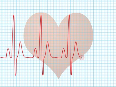 What Is the Difference Between Male & Female Heart Rates?