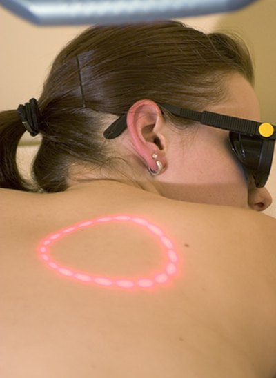 Laser Treatment to Remove Moles