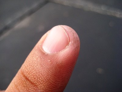 How to Treat an Ingrown Fingernail