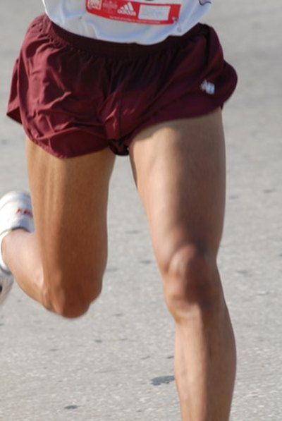Why Do My Legs Itch When I Run?