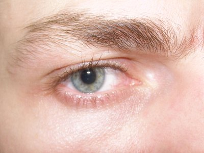 Adverse Reactions to Vitamin E Drops in the Eye