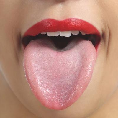 Black Tongue Symptoms