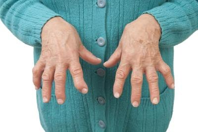 Symptoms of Lupus Vs. Rheumatoid Arthritis