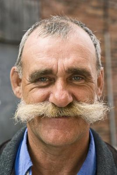 What Are the Causes of Mustache Hair Loss?