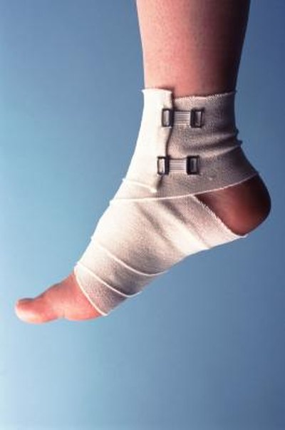 How to Care for a Sprained Foot