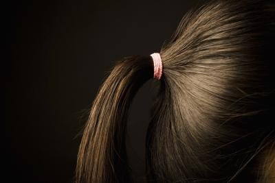 Traction Alopecia Treatments