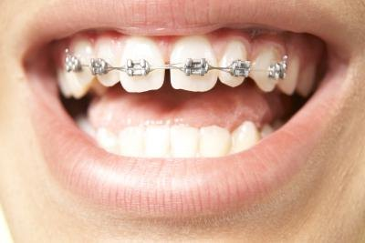 About Rubber Bands for Braces