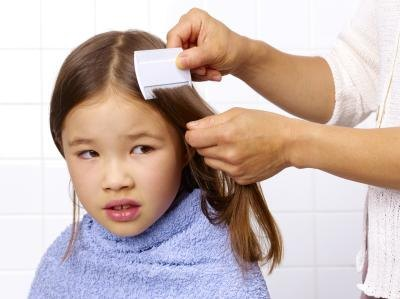 The Effects of Dandruff Shampoo on Lice