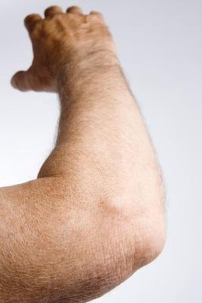 Causes of Painful, Dry Skin on the Elbows