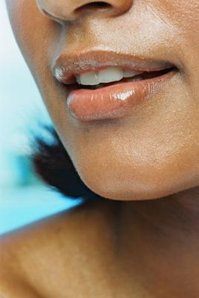 Brown Pigmentation on the Upper Lip